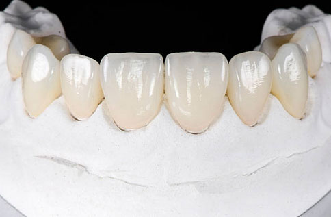 Dental Veneers Tucson, AZ - Old Pueblo Dental